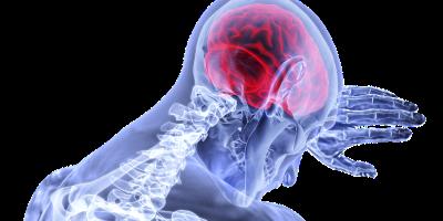 Udar mózgu – jak zapobiegać, jak rozpoznać?