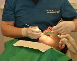 Zasady refundacji protez stomatologicznych