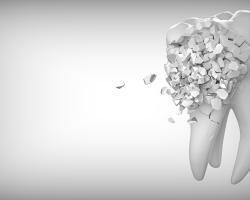 Co robić, gdy dziecko złamie lub wybije ząb?