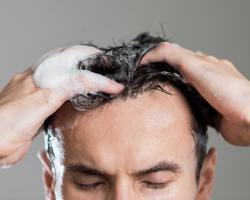Czy warto stosować kosmetyki na łuszczycę?