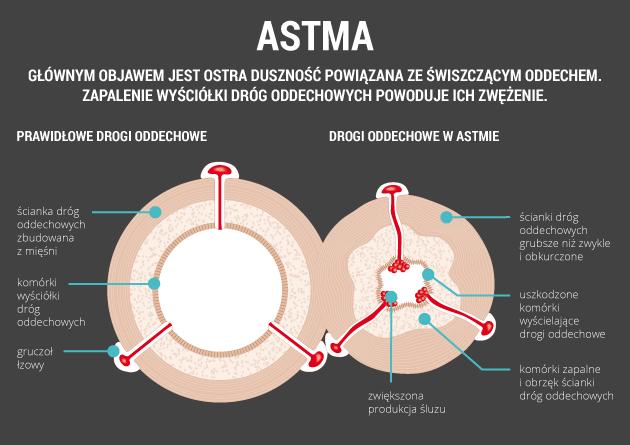 infografika - astma