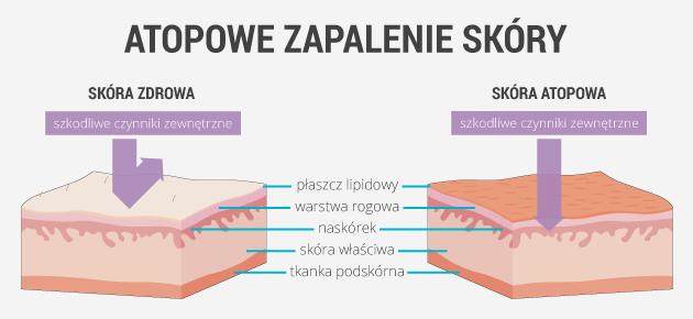 infografika - atopowe zapalenie skóry