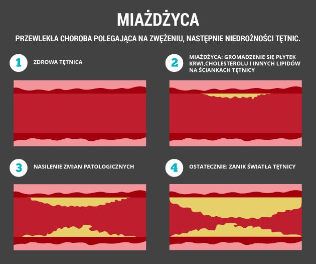 infografika - miażdżyca