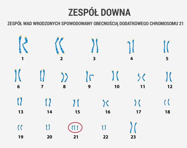 infografika - zespół Downa