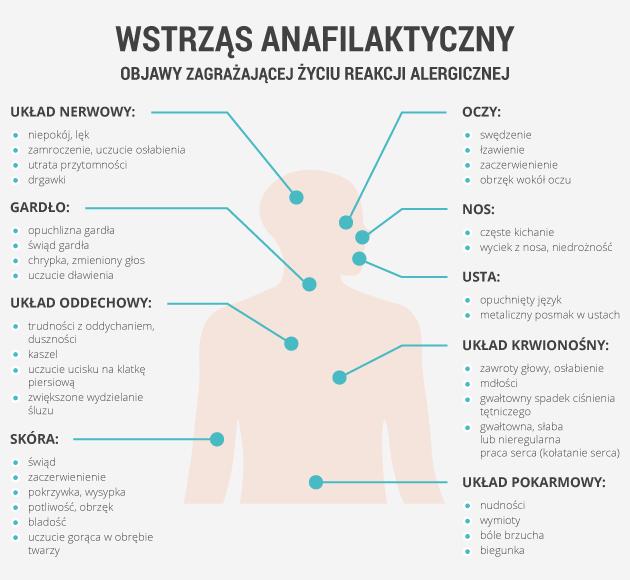 infografika - wstrząs anafilaktyczny
