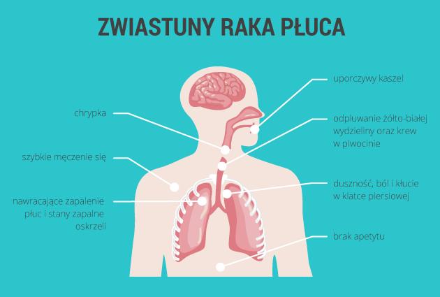 infografika - zwiastuny raka płuc