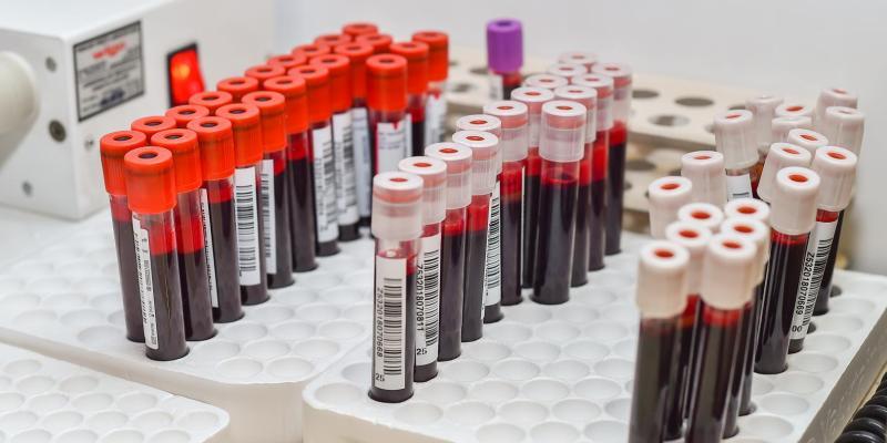 Pięć powodów, żeby zrobić test na HIV