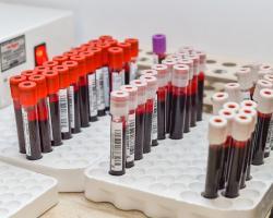 Bladość i częste infekcje mogą być objawem białaczki?