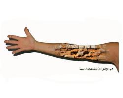 9 faktów o atopowym zapaleniu skóry