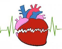 Koronawirus a choroby serca: nie odstawiaj leków!